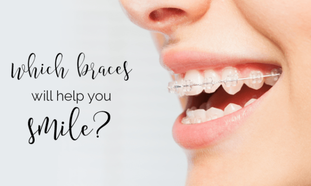 4 Steps To Choose the Right Braces for Your Smile