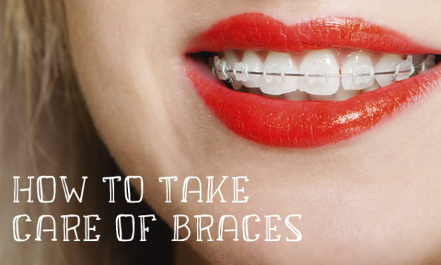 How To Care For Teeth With Braces: Tips for New Braces Wearers